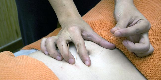 Mutuelle santé senior avec prise en charge acupuncture : prix et devis